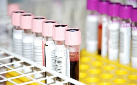 badania-laboratoryjne-a-kondycja-ogolna